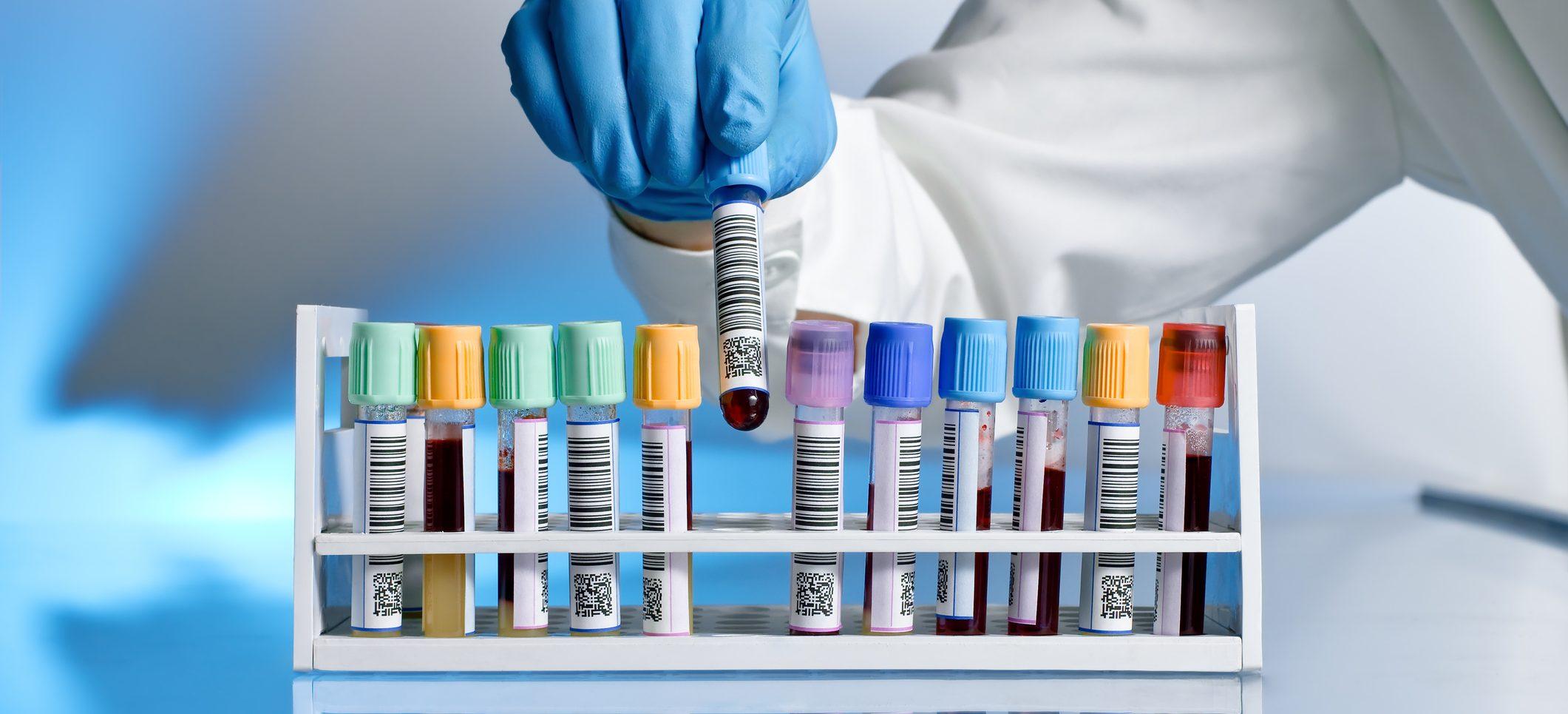 Esami di laboratorio - MensCPZ