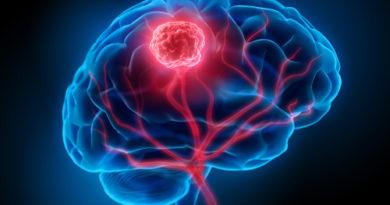 Tumori cerebrali: i benefici del carboplatino anche nei soggetti adulti